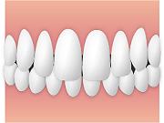 「出っ歯」